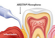 Periodontal_Therapy2