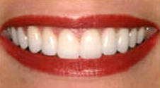 Whitening2A