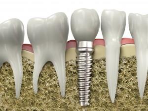 Dental Implant Shown